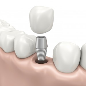 Dental-Implants Image