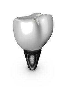 Dental implants with Dr. Kosinski