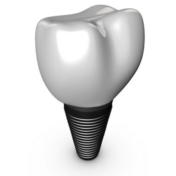 Dental implants with Dr. Kosinski